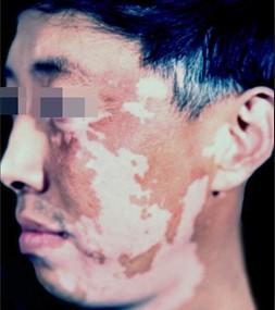 北大专科医生提醒白癜风患者应避免暴晒